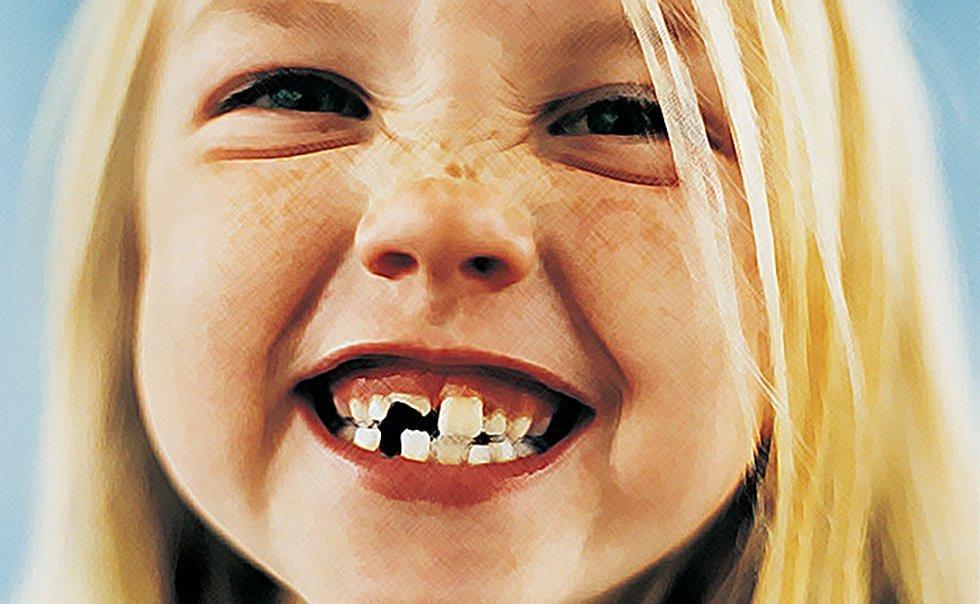 小儿牙齿外伤