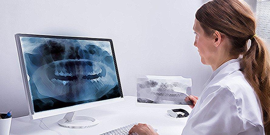 牙齿失去活力:必不可少的测试